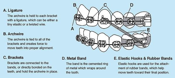 Braces diagram parts orthodontist south plainfield nj patient info ccuart Choice Image
